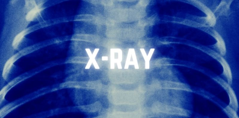 DR X-ray Company Limited Mobile Services FAQ 3